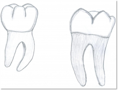 mandibular first molar